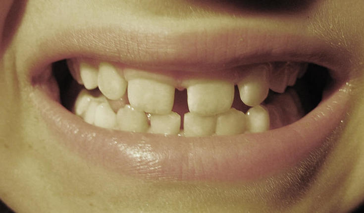 Infections During Childhood Increase >> Childhood Caries And Periodontal Diseases May Increase The Risk Of