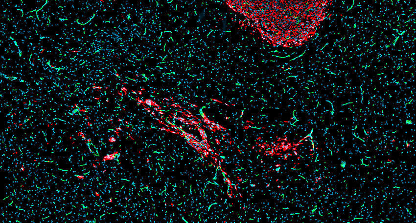 Patient-derived glioblastoma cells (red) implanted in murine brain (blue).