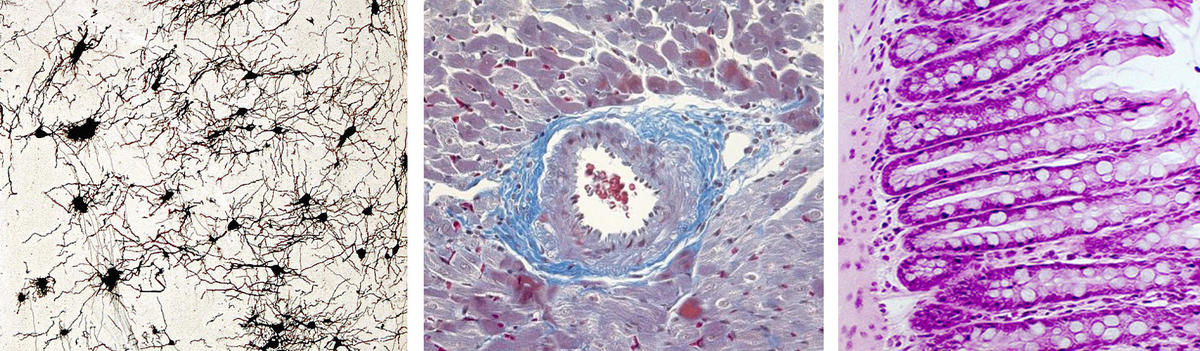 Histological samples of brain, heart and gut.