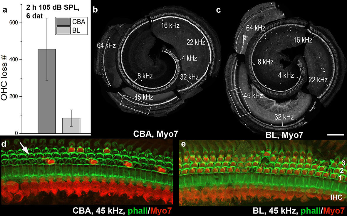 Mouse strain differences in hair cell loss following noise exposure shown in immunofluorescence picture.