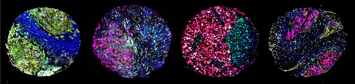 Cancerous cells stained with different markers