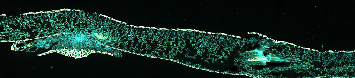 Tile image of leaf spores at 20x