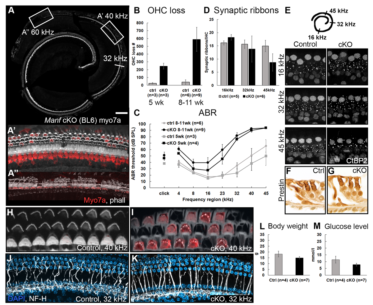 Collection of images from Herranen et al. 2020 by Pirvola group showing various histological images decipting hearing damage in the inner ear in mutant manf mice.