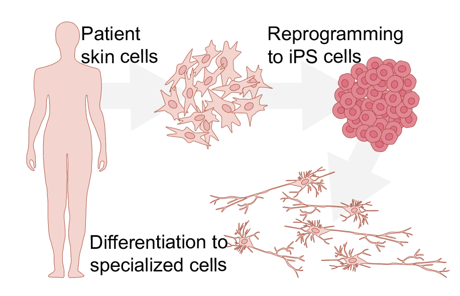 iPS cells are used a lot for disease modeling, Image: Emilia Kuuluvainen