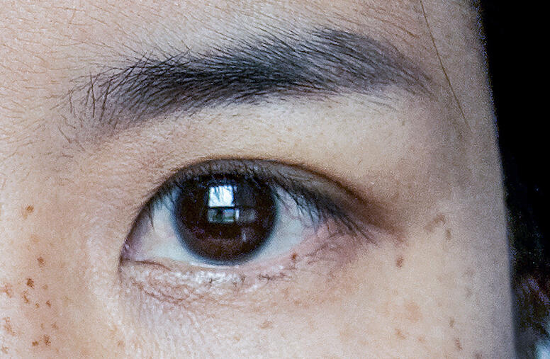 Stem cell treatments for the eyes