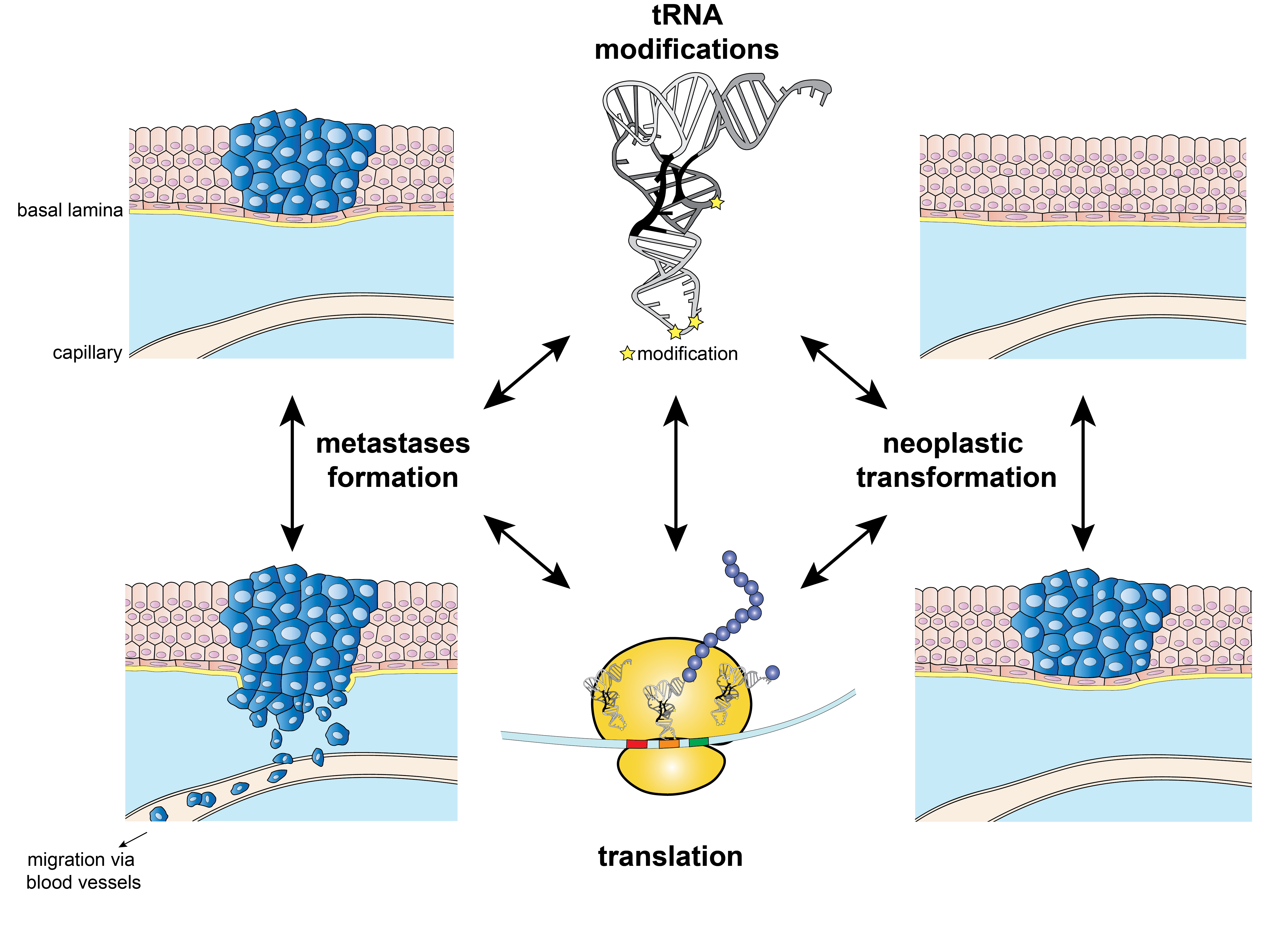 tRNA modification and cancer